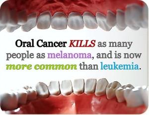 Oral cancer kills