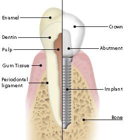 Anatomy of a Dental Implant